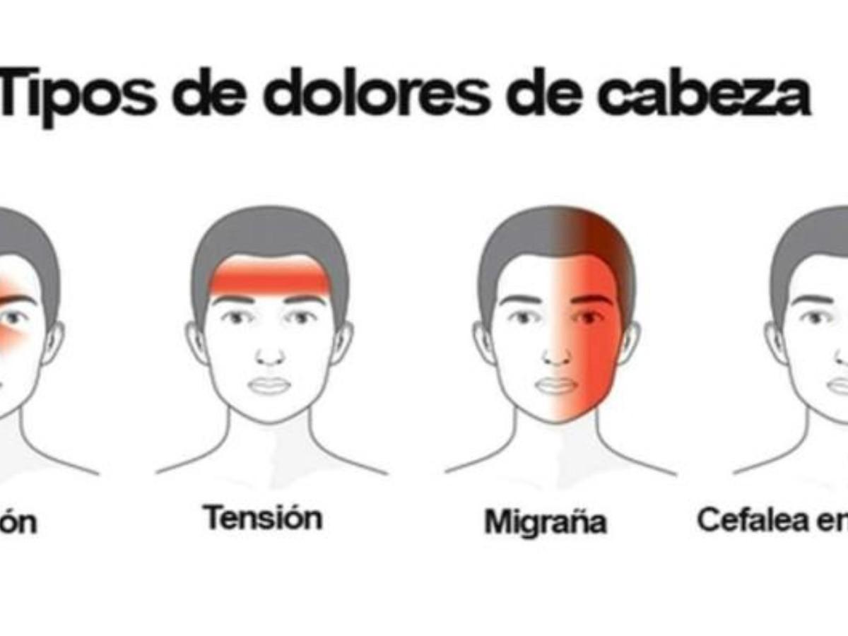 Tipos De Dolores De Cabeza Y Cómo Eliminarlos Elimparcial Com Noticias De Sonora México