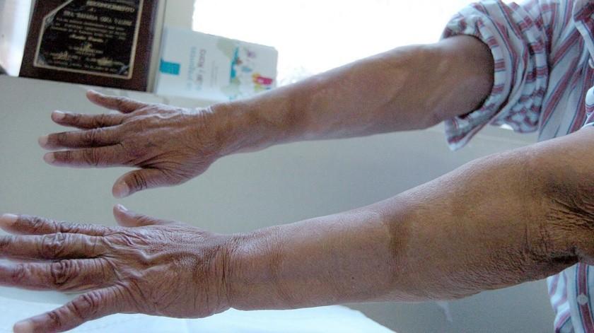 La lepra es una enfermedad infecciosa.(Banco Digital)