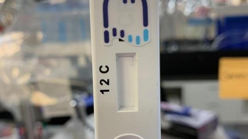 La empresa de biotecnología aún debe probar el prototipo en humanos, por lo que está en contacto con el Centro de Control de Enfermedades, que recibe este tipo de muestras.(EFE)