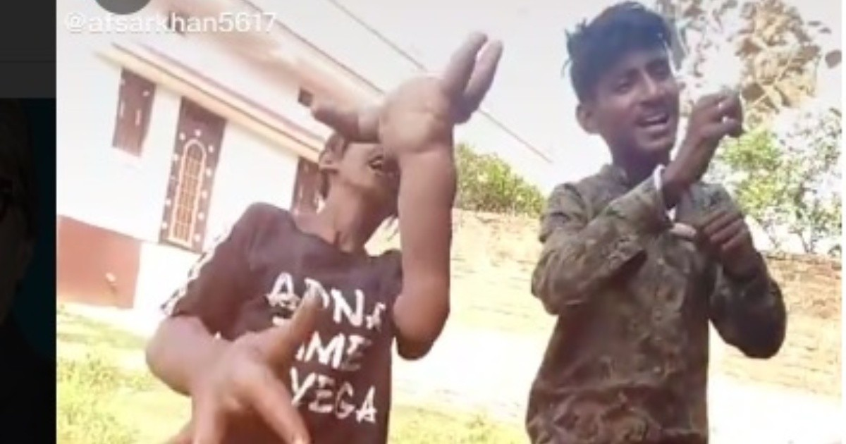 Joven con las manos gigantes se vuelve viral en Tik Tok